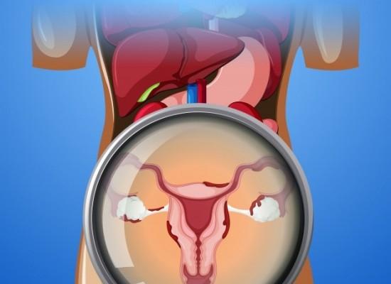 endometriosiz